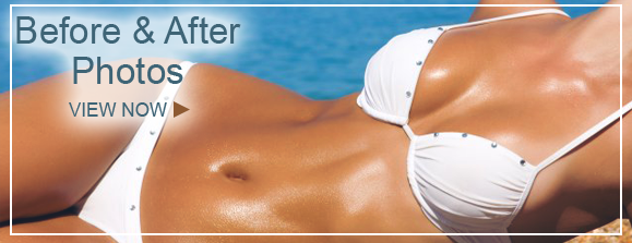 before and after Breast Augmentation NY