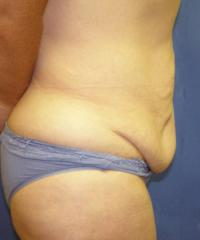 After Massive Weight Loss Case 112 - Body Lift - Before