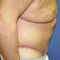 After Massive Weight Loss Case 114 - Body Lift - After