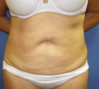 Body Contouring Case 118 - Liposuction - Before