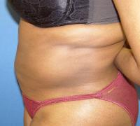 Body Contouring Case 119 - Liposuction - After