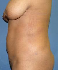 Body Contouring Case 120 - Liposuction - After