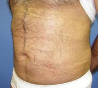 Body Contouring Case 121 - Liposuction - After