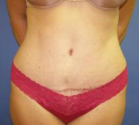 Body Contouring Case 128 - Mommy Makeover - After