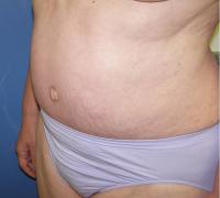 Body Contouring Case 130 - Tummy Tuck with Liposuction - After