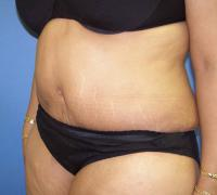 Body Contouring Case 131 - Tummy Tuck with Liposuction - After