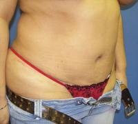 Body Contouring Case 133 - Tummy Tuck with Liposuction - After