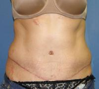Body Contouring Case 138 - Tummy Tuck with Liposuction - After