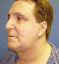 Facial Surgery Case 174 - Neck Lift - After