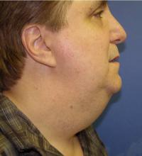 Facial Surgery Case 174 - Neck Lift - Before