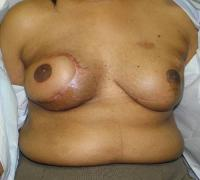 Breast Reconstruction Case 175 - Flap Reconstruction - After