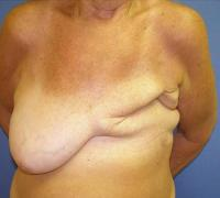 Breast Reconstruction Case 176 - Flap Reconstruction - Before