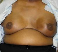 Breast Reconstruction Case 181 - Implant Reconstruction - After