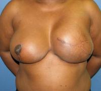 Breast Reconstruction Case 185 - Flap Reconstruction - After