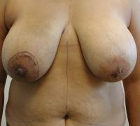 Breast Reconstruction Case 187 - Flap Reconstruction - Before
