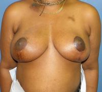 Breast Reconstruction Case 195 - Oncoplastic Reconstruction - After