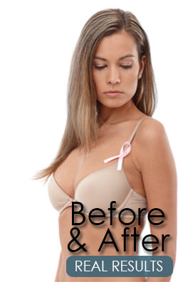 Breast Reconstruction New York before and after